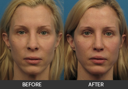 Lip Augmentation Before & After Gallery