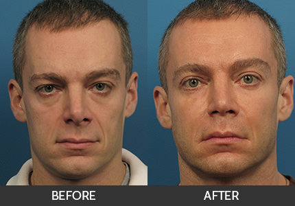 Eyelid Surgery Before & After Gallery