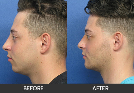 Chin Augmentation Before & After Gallery