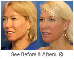 Beverly Hills Body Before & After Photos